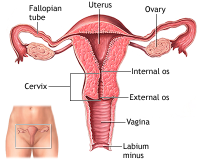 Preventing Cancer by removing ovaries and uterus